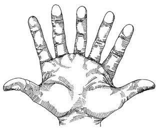 Seven_fingered_hand